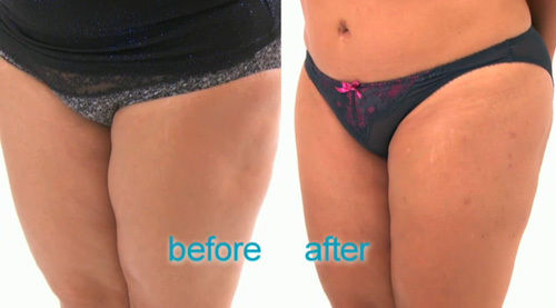 SEE: Woman's botched liposuction on her legs will give you