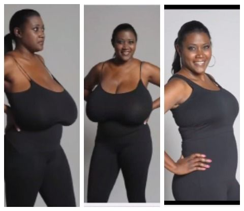 woman breast reduction